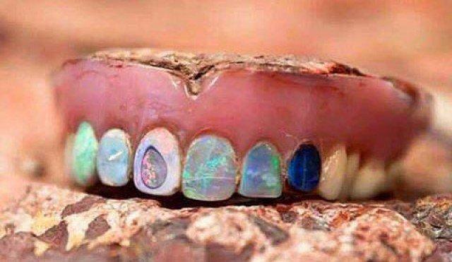 Hodge's Opal Dentures