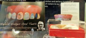 Teeth on Display at National Museum